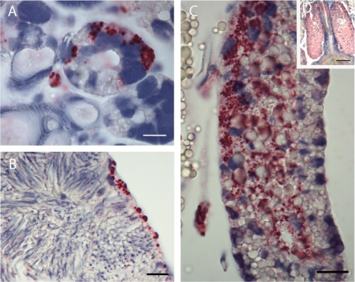 Whole tick sections subjected to ISH assay.(A) Acini and salivary ducts of infected adult female SB = 1μm. (B) Spermatozoa of adult male with infected lining sheath. SB = 1μm. (C) Infected adult male accessory gland (single lobe). SB = 2μm. (D) Infected adult male accessory gland (multiple lobes). SB = 10μm.