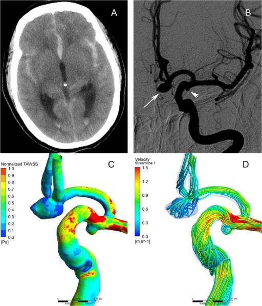 Morphological-hemodynamic characteristics of multiple intracranial aneurysms in the ipsilateral anterior circulation.A 60-year-old female presented with severe headache. CT scan showed subarachnoid hemorrhage (A). The angiograms of left internal carotid artery showed a ruptured aneurysm (B, large arrow) and an unruptured aneurysm (B, small arrow). The distribution of normalized wall shear stress (WSS) magnitude on the aneurysms sac showing the ruptured aneurysm had a lower WSS than the unruptured one (C). The Streamlines showing the flow pattern of the ruptured aneurysm was complex at peak systole (D). Streamlines are rendered with colors according to the velocity magnitude.