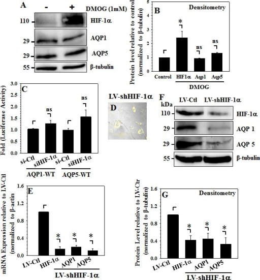 HIF-1α maintains basal AQP expression in NP cellsA and B, Western blot (A) and corresponding densitometric analysis (B) show that treatment of rat NP cells with DMOG (1mM) has no effect on levels of AQP1 and AQP5, as expected accumulation of HIF-1α protein by DMOG is evident. (C), Suppression of HIF-1α expression by co-transfection with Si-HIF-1α does not significantly change activities of AQP1 and AQP5 promoters in comparison to rat NP cell transfected with control siRNA. (D), YFP expression demonstrates efficient transduction of human NP cells infected with lentivirus encoding both HIF-1α shRNA and YFP. (E), Stable Silencing of HIF-1α by lentiviral Sh-HIF-1α causes strong decrease in basal levels of both AQP 1 and AQP5 mRNA in human NP cells. As expected, HIF-1α mRNA levels were significantly lower in silenced cells compared to cells that received control shRNA. F and G, Western blot (F) and corresponding densitometric analysis (G) shows that HIF-1α silencing in human NP cells results in robust decrease in both AQP 1 and AQP5 protein levels.