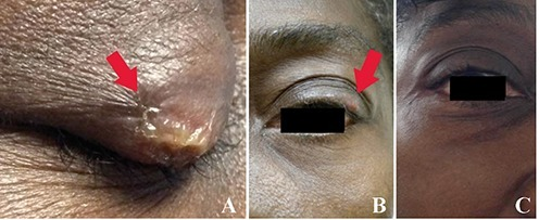 Patients' upper eyelid lesions (A, B) and their improvement (C)