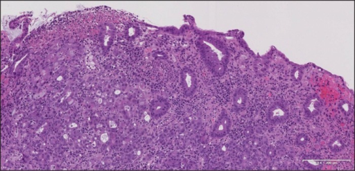 Moderately differentiated cecal adenocarcinoma with infiltration of adenocarcinoma cells into the submucosa and normal adjacent glands.