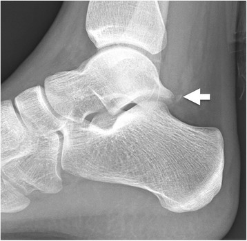 Shepherds fracture. Fracture of the lateral tubercle of | Open-i
