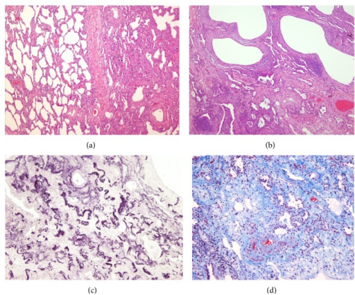 Histological features of Case  1 (surgical lung biopsy specimen). (a) Microscopic image showing sparsely cellular dense connective tissue with small vessels. Hematoxylin-eosin (HE) 100x. (b) At high power inset in area of dense fibrosis with multiple capillaries, without inflammatory infiltrate appearance. HE 250x. (c) Microscopic image shows the presence of abundant elastic fibers irregularly grouped. Orcein stain 100x. (d) Microscopic appearance of the image (b), visualized by fluorescence. Elastic fibers, which shine for eosin autofluorescence, can be observed. Fluorescence microscopy 250x.