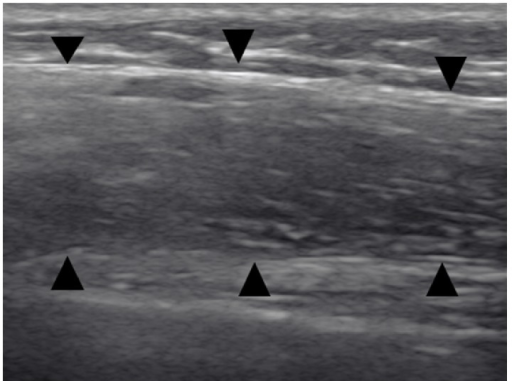 Case  2. Thoracic ultrasonography at the level of the middle third of left thorax shows a thick hypoechoic band with fine echoes, reflecting thickening of the visceral pleura (arrowheads).