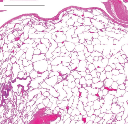 Emphysematous changes with hyperinflation in the resected lung tissue stained with haematoxylin and eosin. Scale bar=2 mm.