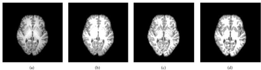 Segmentation results for a clinical 3 T MR image: (a) original image; (b) segmentation result of GMM; (c) segmentation result of Wells; (d) segmentation result of MNGMM.