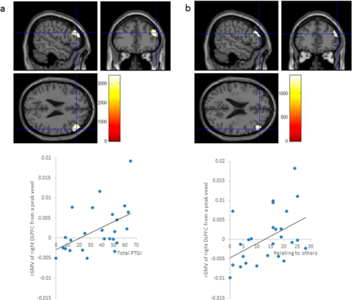 (a) Regions that were correlated with the delta-rGMV values from the significant peak voxel. After controlling for sex, age, and total intracranial volume (TIV), the subscore for relating to others was positively associated with the delta- rGMV in the right dorsolateral prefrontal cortex (DLPFC) (x = 54, y = 38, z = 25; Threshold-free cluster enhancement [TFCE] = 3405.80, P = 0.027, k = 917), with a family-wise error (FWE) correction. A scatterplot of the relationship between the scores for relating to others and the delta-rGMV value from the significant peak voxel is shown. (b) Regions that were correlated with the delta-rGMV values from the significant peak voxel and total score on the PTGI. After controlling for sex, age, and TIV, the total score on the post-traumatic growth inventory (PTGI) was positively associated with the delta-rGMV in the right DLPFC (x = 54, y = 42, z = 22; Threshold-free cluster enhancement [TFCE] = 1376.47, P = 0.031, k = 504), with a family-wise error (FWE) correction through small volume correction (SVC) using a mask with regions that are functionally and structurally related to the DLPFC. A scatterplot of the relationship between the total scores on the PTGI and the delta-rGMV value from the significant peak voxel is shown.