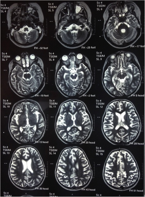 Brain magnetic resonance imaging sections showing generalized brain atrophy