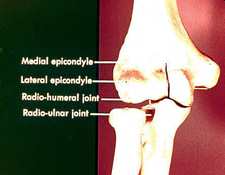 medial humoral epicondyle; lateral humoral epicondyle; radiohumeral joint; radioulnar joint