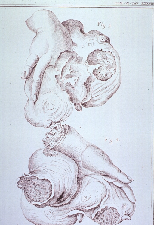 <p>Two views of a hand with large tumorous growth.</p>