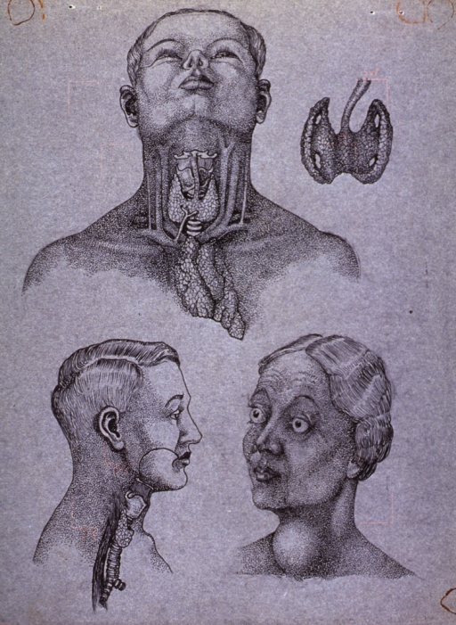 <p>Head and neck views of male and female patients illustrating abnormal thyroid growth.</p>
