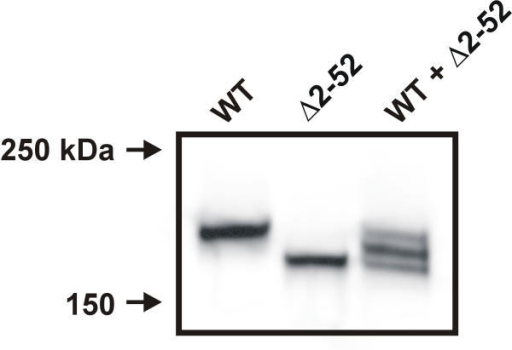 The 200 kDa band represents a dimer of VR1 subunits. Western blot of oocytes expressing wild-type VR1, Δ2–52, or wild-type VR1 + Δ2–52. Oocytes were prepared as described in Experimental Procedures. The band observed for VR1-express ing oocytes was at 200 kDa, the band observed for the Δ2–52-expressing oocytes was at 180 kDa, while oocytes injected with a 1:1 ratio of VR1 and Δ2–52 RNA yield three bands of 200 kDa, 180 kDa, and 190 kDa. This blot was probed with the FLAG antibody.