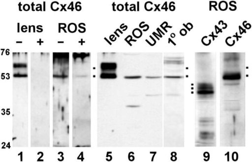 Immunoblot for Cx46 in lens and osteoblasts. (Lanes 1–4)  Samples from rat lens (lanes 1 and 2) and ROS (lanes 3 and 4)  were resolved by SDS-PAGE, electrophoretically transferred to  PVDF membranes, and then immunoblotted for Cx46. For lanes  2 and 4, the antiserum was preincubated with Cx46-his before immunoblotting, which blocked the recognition of Cx46. (Lanes 5–8)  Samples from rat lens (lane 5), ROS (lane 6), UMR (lane 7), and  primary rat calvarial cells (lane 8) were normalized for total protein and immunoblotted for Cx46. All three osteoblastic cell  types expressed the 53-kD form of Cx46. (Lanes 9 and 10) Samples from ROS cells corresponding to total cell protein were immunoblotted for either Cx43 (lane 9) or Cx46 (lane 10). Roughly  10-fold more protein was loaded for these lanes than the corresponding sample in lane 6. Migration of molecular weight standards is indicated in the figure, and dots correspond to specific  protein bands.