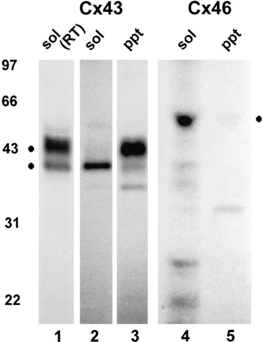 Triton solubility of Cx43 and Cx46 in ROS cells. ROS  cells were metabolically radiolabeled with 35S-Trans label, harvested, homogenized, and solubilized in 1% Triton X-100 at either room temperature (lane 1) or 4°C (lanes 2–5) for 30 min. Triton-soluble (lanes 1, 2, and 4) and -insoluble (lanes 3 and 5)  fractions were analyzed by immunoprecipitation using antisera  that recognizes either Cx43 (lanes 1–3) or Cx46 (lanes 4 and 5).  Note that the Cx46 band (lane 4) was somewhat distorted due to  the presence of high levels of IgG heavy chain required for immunoprecipitation. At 4°C, Cx46 showed complete Triton X-100  solubility, while Cx43 was only partially soluble (lane 2). Migration of molecular weight standards is indicated in the figure, and  dots correspond to specific protein bands.