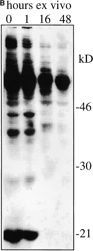 Loss of CD5 expression levels and basal tyrosine phosphorylation from naive CD4 LN cells maintained in vitro without TCR stimulation. Suspension cultures of APC-depleted Rag1o/o AND TCR transgenic LN cells (see Materials and Methods) were analyzed (A) for expression of TCR Vβ3 (the AND β chain) and CD5 by flow cytometry (histogram overlays are on a log scale and gated on CD4+ cells) and (B) for tyrosine phosphorylation status by Western blot analysis of total cell lysates with anti phosphotyrosine mAb. Note the decline of CD5 and tyrosine phosphorylation levels over time.