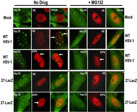 Preventing Phospho-serine 2 RNAP II Degradation Also Prevents Hsc70 Focus Formation.Vero cells that were mock-infected or were infected with WT HSV-1 or 27-LacZ were untreated (left panels) or were treated with 50 µM MG132 added 1 h after infection (right panels). Cells were fixed at 8 h after infection and stained with anti-Hsc70 antibody, antibody H5 and anti-ICP4 antibody as indicated. Arrows mark Hsc70 foci (green) or replication or pre-replication sites (red).