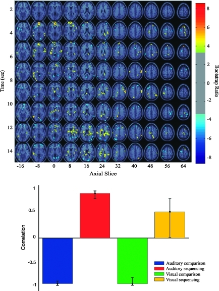 Singular image (top) and correlation between brain scores and the BA 47 seed voxel for the task demands LV from seed PLS. The singular image identifies peak voxels showing a different pattern of correlations with the BA 47 voxel across tasks. The correlation bar graph captures the task-dependent changes in the correlation with the seed voxel of the areas identified in the singular image. The error bars indicate the 95% confidence interval derived from bootstrap estimation.
