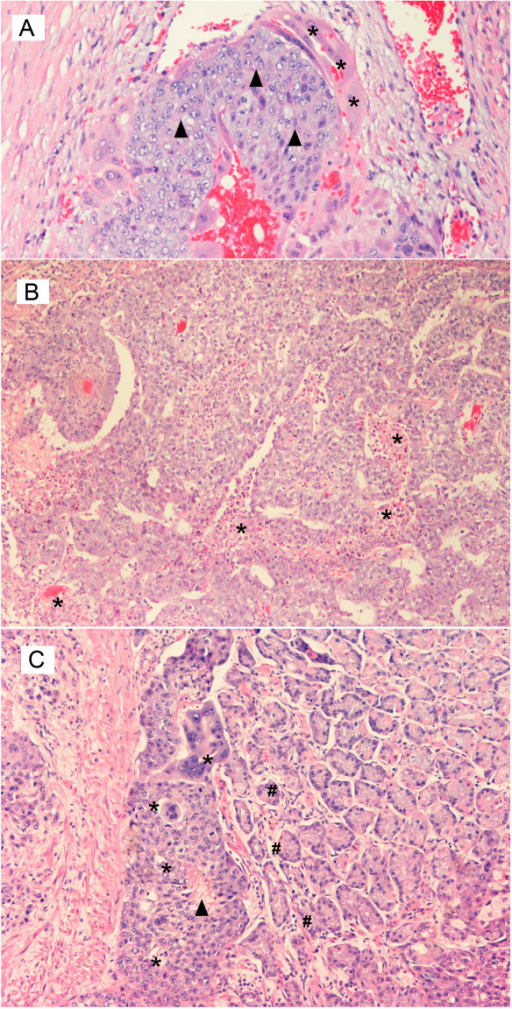 Histopathology of the Testis Hematoxylin and eosin stained, medium power, magnification ×250. A. Mixed germ cell tumor of the testis – highlighting a focus of primary choriocarcinoma as seen by the presence of black triangle – cytotrophoblast and * – syncytiotrophoblast cells. B. Mixed germ cell tumor of the testis – highlighting a focus of embryonal carcinoma associated with * – multiple foci of necrosis. C. Metastatic testicular choriocarcinoma – as seen by the presence of * – metastatic trophoblastic cells with areas of black triangle – central necrosis admixed with # – gastric glands.