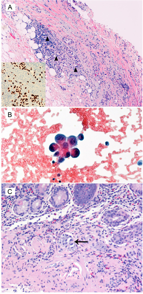 Histopathology of the Pleural Biopsy Hematoxylin and eosin stained, low power magnification ×150. A. Pleural biopsy confirming the presence of black triangle – atypical neoplastic cells infiltrating the fibro connective tissue and adipose tissue of the pleura. The inset in the bottom left shows positive immunohistochemical staining with TTF1 supporting primary lung carcinoma. B. Pleural fluid demonstrates the presence of atypical cells with a high nucleus cytoplasmic ratio supporting a neoplastic lesion. C. Mucosal biopsy of the stomach showing the presence of large atypical malignant cells in the vascular channels with ↑ – enlarged hyperchromatic pleomorphic nuclei consistent with poorly differentiated carcinoma from the lung.