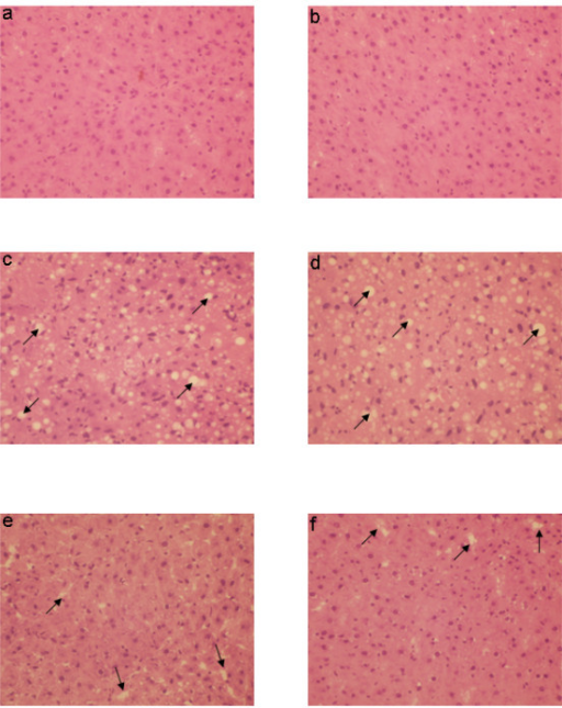 Effect of CCl4 with or without prior administration of natansnin on histological characteristics. Haematoxylin and Eosin staining was performed in liver sections of control (a, b), CCl4 (c, d) and natansnin (10 mg/kg (e), 20 mg/kg (f) body weight) treated rats. An Arrow symbol represents fatty vacuoles and lattice nature of the hepatocytes.