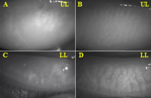 Meibomian gland images observed by noncontact infrared meibography. A, C: DE/cGVHD group, 57 year-old male (Case 1; Table1). Note the numerous meibomian gland dropouts. B, D: Non-DE/Non-cGVHD group, 28-year-old male (Case 2; Table2) No loss of meibomian glands was observed in the patient who did not develop DE after HSCT. UL=Upper, Left, LL=Lower, Left.