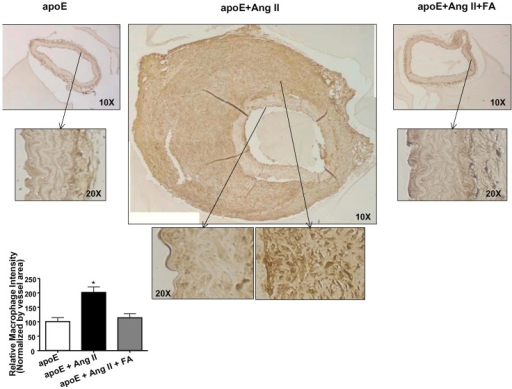 Folic acid reduces inflammation in Ang II-infused apoE  mice.Abdominal aortas were collected from sham operated (left column), Ang II-infused (center column), and Ang II-infused and folic acid (FA, right column) treated apoE  mice 4 weeks after infusion. Tissues were then sectioned and stained for Mac-3 for infiltrating macrophage. Areas within the box were enlarged to better show details of the macrophage infiltration. The degree of macrophage infiltration was measured and quantified in Image J (*p<0.01 vs. all, n = 4 each).
