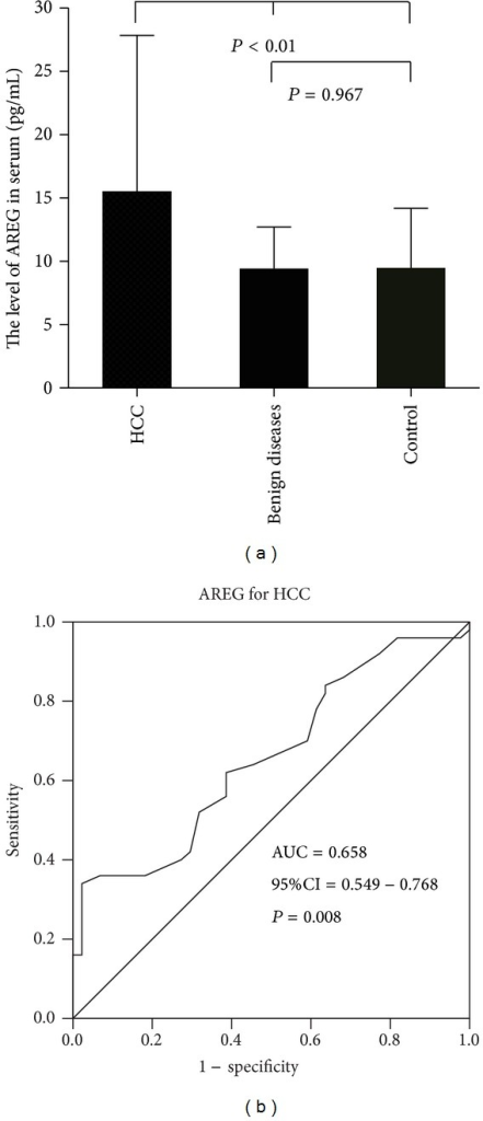 (a) showed the levels of serum AREG among normal controls, benign liver disease, and HCC patients. Mean levels of serum AREG and Std. Deviation is illustrated by bar charts; (b) showed the ROC curves of serum AREG between normal controls and HCC patients.