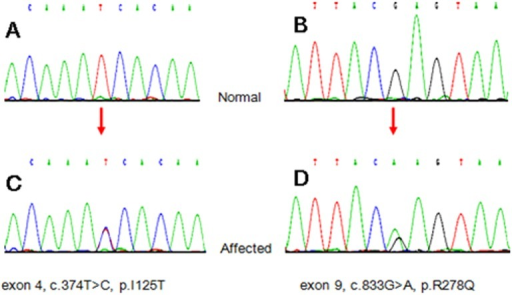Chromatogram of DLG1 gene mutations.The Sanger sequence traces from normal human controls are shown in panel A and B; the mutations were heterozygous at the corresponding locus (orange arrows indicating) in panel C and D.