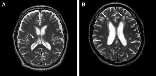 Brain MRI. Representative brain MRI findings (T2-WI) of non-diabetic (A) and diabetic (B) nephropathy patients are shown. Arrows indicate cerebral infarctions.