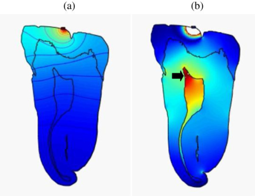 Snapshots of pressure and intensity plots of (45 kHz, 31 kPa) ultrasonic wave throughout the tooth.(a) Pressure at t = 1 μs and (b) intensity at t = 3.35 μs. It shows high-intensity concentration in pulp (arrow) (Additional file2).