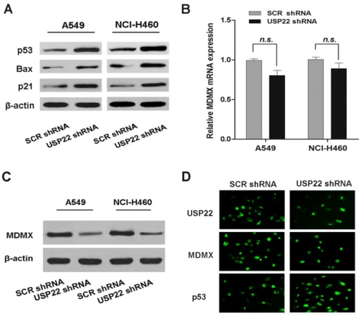 USP22 silencing activates the p53 pathway, down-regulates MDMX protein expression and interacts with MDMX in NSCLC cells. (A) The levels of p53 pathway proteins in A549 and NCl-H460 cells transfected with USP22 shRNA or SCR shRNA; (B,C) the mRNA and protein expressions of MDMX in A549 and NCl-H460 cells transfected with USP22 shRNA or SCR shRNA (n = 3). β-actin was used as an internal control. Data are expressed as the means ± SD. n.s. indicates no significant difference; (D) Immunofluorescence (IF) analysis of USP22, MDMX and p53 expression in A549 cells transfected with USP22 shRNA or SCR shRNA.