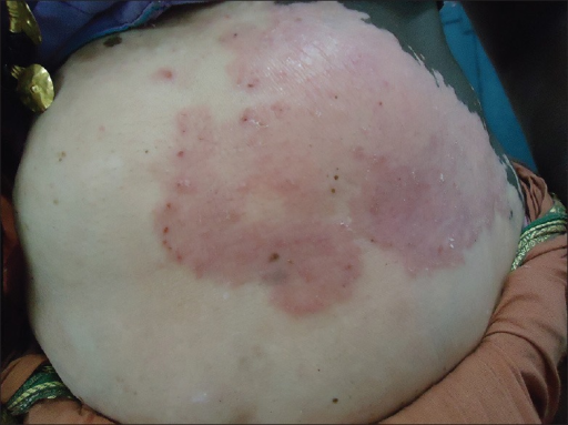 Patch of tinea corporis with scaling and peripheral extension towards the depigmented, vitiliginous patch sparing the pigmented skin over the abdomen and chest