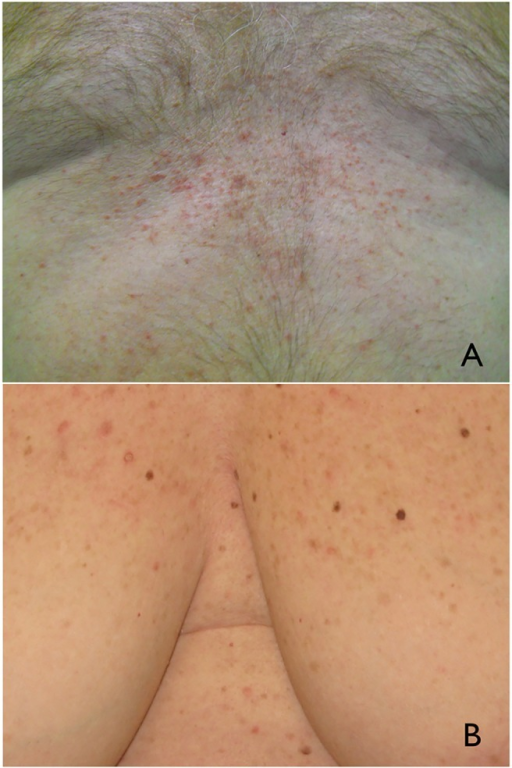 (A) Clinical examination of case 1 showed multiple confluent erythematous papules in a patient with Grover's disease. (B) Clinically, multiple reddish papules were observed on the chest of a patient with stage IV melanoma treated with vemurafenib. (Copyright: ©2015 Specchio et al.)