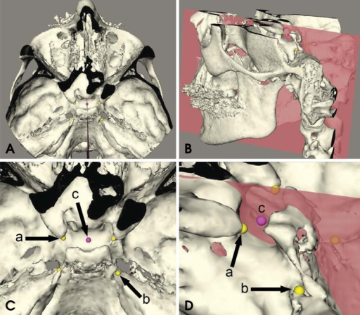 (A) and (B) show a threedimensional model of one patient in a top and oblique overview, respectively. In this figure, a reference system is created by locating four landmarks (the right and left anterior clinoid process [ACP] and the right and left apex of the petrous part of the temporal bone right [APT]). (C) is a close-up of the top view presented in (A), showing the landmarks that form the reference system: (a) right and left ACP, (b) right and left APT, and (c) one of the sella landmarks. (D) is a close-up of the oblique view, showing landmarks (a), (b), and (c). The sella landmark (c) was located on one of the vertical planes created from the reference system in the Maxilim® software.