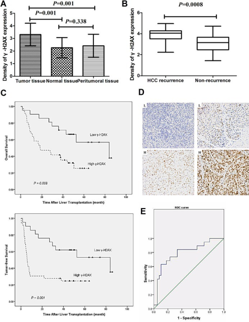 Increased levels of γ-H2AX indicate worsening prognosis and recurrence/metastasis of HCC(A) Protein levels of γ-H2AX were determined in 57 samples of HCC, 37 samples of peritumoral tissues and 17 samples of normal tissues samples. (B) Protein levels of γ-H2AX in tumor tissues of patients with post-LT HCC recurrence (n = 24) in comparison to patients with no-recurrence (n = 33). The unit of scale (y-axis of the (A) and (B)) presents the staining density. (C) The tumor-free and over-all survival rates of 57 patients with HCC post LT were compared between the low-γ-H2AX and high-γ-H2AX groups. (D) HCC samples in a tissue microarray were immunostained with a monoclonal anti-γ-H2AX antibody. Representative low-γ-H2AX (L) and high-γ-H2AX expression (H) samples are also shown (×200). (E) ROC curve of γ-H2AX level was used to predict tumor recurrence and non-recurrence after liver transplant.