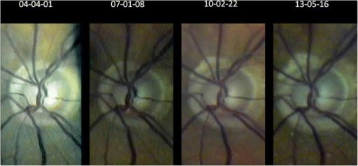 Over 9 years progressing excavation of the right optic disc (seen through the slit lamp with fundoscopic lens +90D at 32x magnification) despite well-controlled intraocular pressure (for flicker test see Additional file1).