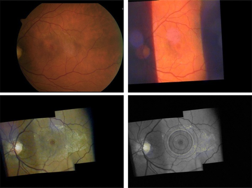 Comparison between fundus photography and slit lamp videography for a right eye with macular hole and epiretinal membrane (here at same magnification, but original images captured at the settings given below - all figures in this article inverted as seen through the slit lamp). Top left: 50° posterior pole image - taken with a fundus camera (Zeiss, FF 450, dilated pupil, image inverted for comparison with slit lamp imaging).- Top right: Attempt to capture the pathological process in only one video image taken with the slit lamp (+90D lens, 12x magnification, slit wide open, white light). This image suffers from poor contrast. Reflexes which often disturb slit lamp fundus images are minor in this case. - Bottom left: Mosaic arrangement of 3 video images taken with the slit lamp (+90D lens, 20x magnification, green light) showing the clinically relevant area within the temporal vessel arcade. Single images were arranged with the program Hugin® and further processed with Power Point®. Disease-related features (macular hole, epiretinal membrane) stand out at greater contrast than in the classic fundus photograph top left. - Bottom right: showing the fundus area illuminated by projecting a 3.5 mm circular aperture on the fundus through different fundus lenses (from outer to inner black ring - the higher the lens power, the larger the illuminated fundus area - for comparison see Figure 3). By applying magnification factors given for the respective lenses in a schematic eye (see text) the ring diameters are 4.7 mm (+90D lens), 3.1 mm (+60D lens) and 2.1 mm (+40D lens) and their relation is 2.25 : 1.5 : 1.0. The white ring indicates a circle of 3.5 mm diameter on the retina.