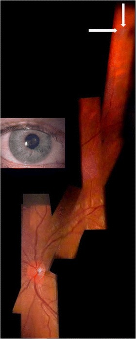 Fundus of a right eye with peripheral pre-retinal snowballs (white arrows) and adjacent shadow on fundus in a patient with sarcoidosis (slit lamp through narrow pupil as shown in inset, +90D lens/12x magnification). Composite created using Hugin® and 6 video images.