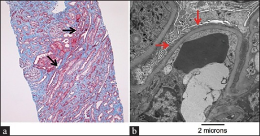Light and electron microscopic evidence of minimal change disease. (a) Light microscopy identifying focal interstitial fibrosis and cellular mesangial expansion (black arrows). No evidence of ischemic injury to tubular structures. Developed with periodic acid-Schiff stain. (b) Electron microscopic demonstration of widespread podocyte effacement (red arrows). Magnification, ×12,000
