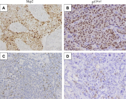 Representative slides demonstrating expression of p57Kip2 and Skp2 in breast cancer tissues. Tumor cells exhibit (A) high (×200) and (C) low (×200) Skp2 nuclear/cytoplasmic staining and (B) high (×200) and (D) low (×200) p57Kip2 stains in breast cancer tissues.