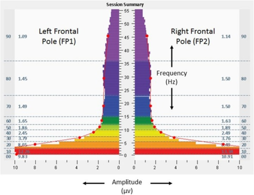 Fast Fourier Transform spectral display of 1 min recording of brain electrical activity at left and right frontal poles (FP1 left, FP2 right), with eyes open, during the baseline assessment, from the 18-years-old learner described in the text. Individual color bars reflect amplitude averages for 1 min of recording, eyes closed, at rest, without stimulation. Columns to the left and right of the color bars denote 10 frequency ranges of aggregated data (00: < 1.0 Hz; 10: 1.0–3.0 Hz; 20: 3.0–5.5 Hz; 30: 5.5–7.5 Hz; 40: 7.5–10.0 Hz; 50: 10.0–12.0 Hz; 60: 12.0–15.0 Hz; 70: 15.0–23.0 Hz; 80: 23.0–36.0 Hz; 90: 36.0–48.0 Hz) and numerical values for amplitude averages in those ranges.