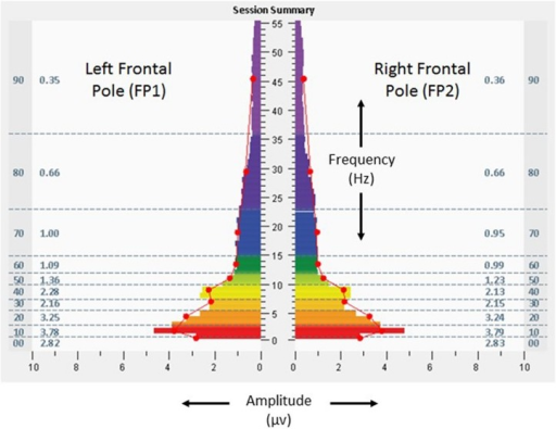 Fast Fourier Transform spectral display of brain electrical activity observed during the penultimate minute of the penultimate allostatic technology session at the left and right frontal poles (FP1 left, FP2 right), with eyes open, from the 18 years-old learner described in the text. See Figure 2 legend for detailed explanation of data elements.
