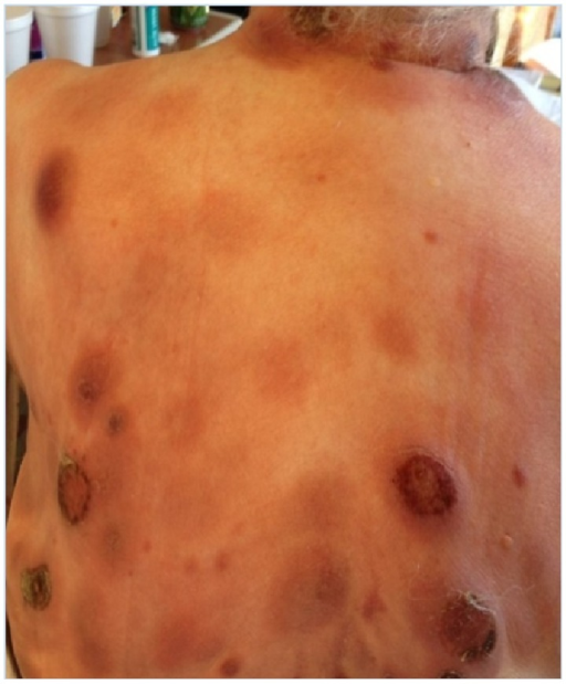 Diffuse, multifocal red-violaceous nodules on the patient's back and neck. Several nodules are ulcerated and crusted and are exudative.