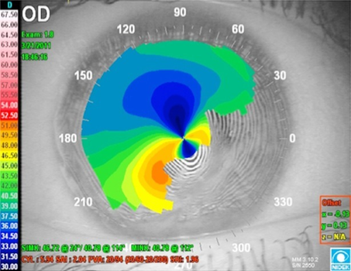 Irregular corneal surface due to scar in the right eye of the Case 1.