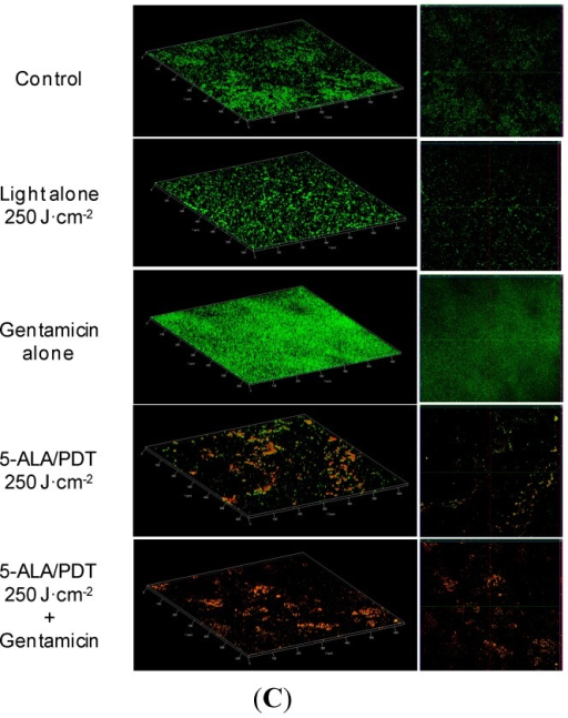 (A) Confocal laser scanner microscopy (CLSM) micrographs: three dimensional (left panels) and orthogonal reconstructions (right panels) of the biofilm formed by S. aureus. The pictures refer to the various experimental conditions as indicated on the left. Light fluence was set at 250 J·cm−2, Gentamicin concentration at 2 μg/mL. The fluorescence is associated with live (green) and dead (red) cells, respectively; (B) CLSM micrographs: three dimensional (left panel) and orthogonal reconstructions (right panel) of the biofilm formed by S. epidermidis. The pictures refer to the various experimental conditions as indicated on the left. Light fluence was set at 250 J·cm−2, Gentamicin concentration at 2 μg/mL. The fluorescence is associated with live (green) and dead (red) cells, respectively; (C) CLSM micrographs: three dimensional (left panels) and orthogonal reconstructions (right panels) of biofilm formed by S. haemolyticus. The pictures refer to the various experimental conditions as indicated on the left. Light fluence was set at 250 J·cm−2, Gentamicin concentration at 2 μg/mL. The fluorescence is associated with live (green) and dead (red) cells, respectively. Scale bars represent 100 μm as indicated in micrographs.