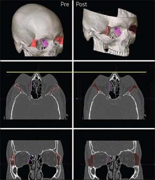 Preoperative (left panels) and postoperative (right panels) demonstrating the three-dimensional computer planning for orbital decompression and superimposition of the expected result over the postoperative images (right middle and right bottom panels)