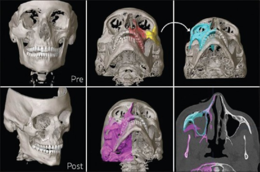 Three-dimensional and axial computed tomography, as used for operative planning for a displaced orbitozygomatic fracture. In the preoperative images (top panels), the displaced zygoma (top left) was repositioned by mirroring the left zygoma and virtually positioning the mirrored bone (top middle and top right panels). The postoperative images (bottom panels) demonstrate anatomic alignment of the zygomatic articulations and reconstruction of the orbital floor