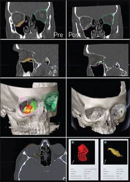 Preoperative (left panels) and postoperative (right panels) images, demonstrating the three-dimensional computer planning and subsequent reconstruction of a large orbital floor defect with an anatomic titanium-alloplastic hybrid implant. The preoperative images are utilized to compute the volume of the defect relative to the unaffected side. The custom implant is then designed to restore the orbital volume and correct the globe position