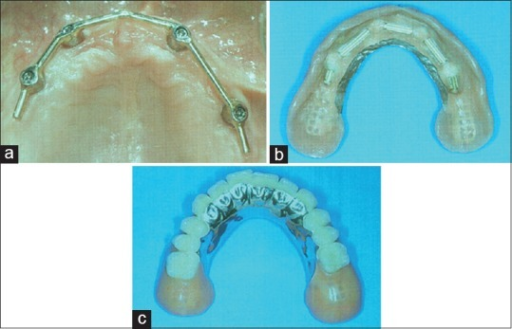 Maxillary implant overdenture with a bar on four implants; (a) inner surface of the overdenture showing the bar retainers; (b) horseshoe type of prosthesis design with open palate. (c) Reprinted from Feine and Carlsson[18] with permission