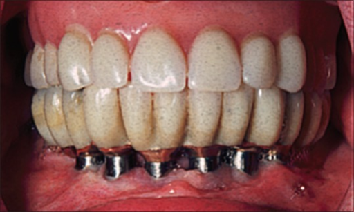 Edentulous subject treated (in the 1970s) with a mandibular implant overdenture on six anteriorly placed implants and a complete maxillary complete denture